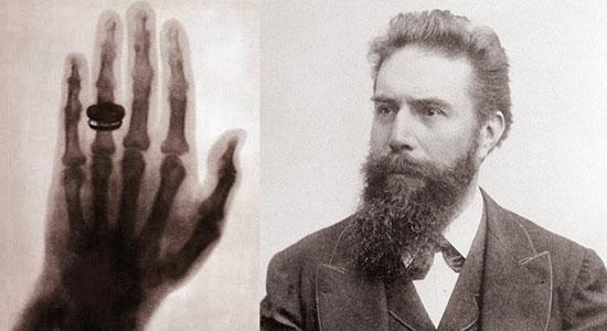 Wilhelm Roentgen, first X-ray picture